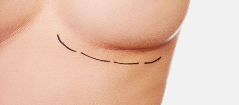 People Start To Dismiss Breast Augmentation Myths