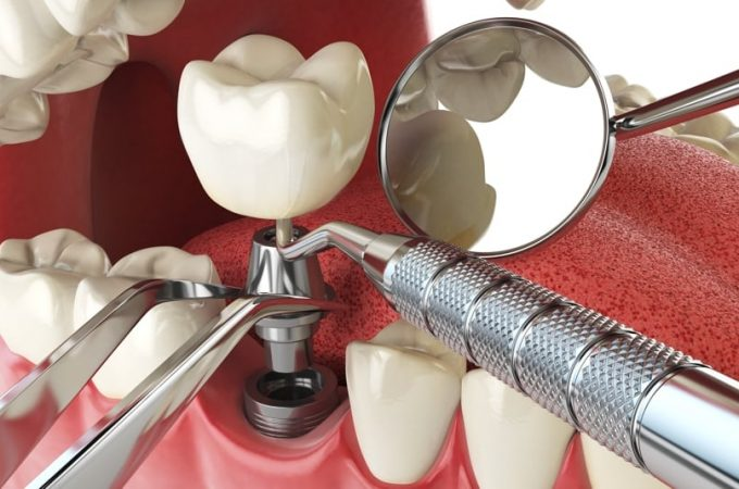 Word of advice before tooth implant