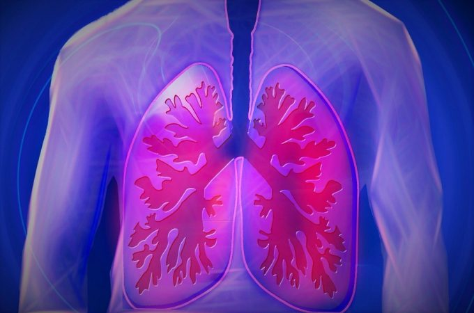 5 Ways to Lower Your Risk of a Pulmonary Embolism