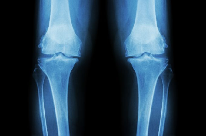 Common Areas Affected by Cartilage Loss